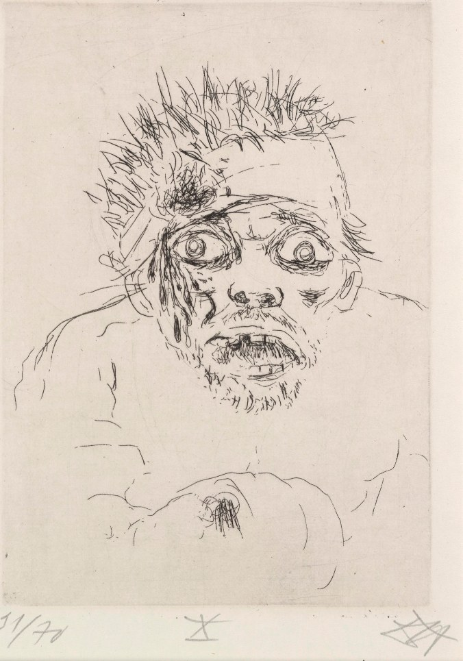 Otto Dix Der Krieg: Sommeschlact (Fleeing wounded Man, Battle of the Somme, 1916) 1924 Etching 25.7 x 19 The British Museum